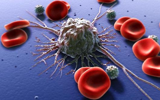 cancer-tratament-celule-canceroase