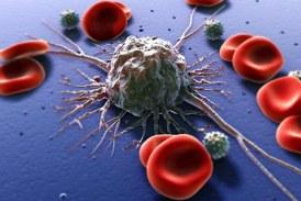 Cancerul de piele: expertii pun la indoiala utilitatea screening-ul anual