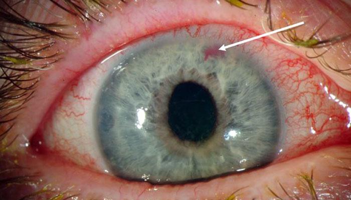 ochi glaucom