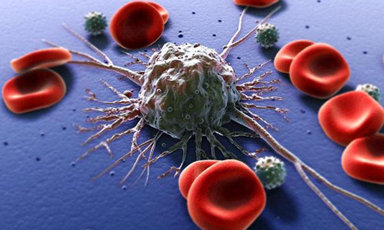 Cancerul, principala cauza de deces in tarile cu venituri ridicate