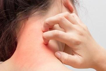 Mii de pacienți cu probleme dermatologice consultați în 6 luni la Spitalul Județean Baia Mare